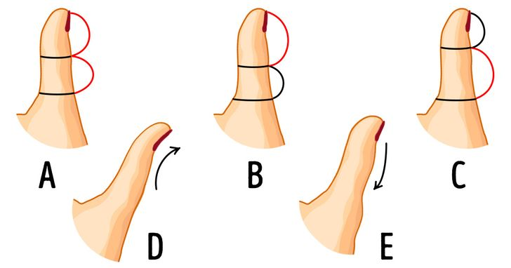 The Shape of Your Thumb Can Reveal A Lot About Your Personality, and It's Curious to Learn About